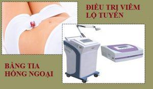 dieu-tri-viem-lo-tuyen-bang-tia-hong-ngoai-01