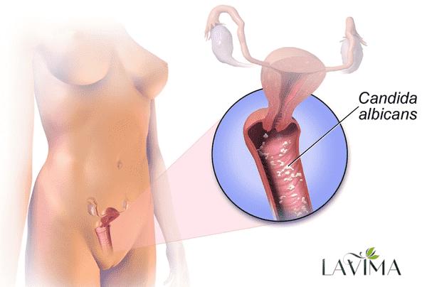 Làm thế nào để điều trị nấm candida tái phát?