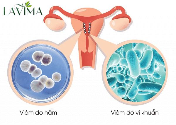 Dung dịch vệ sinh phụ nữ chữa viêm phụ khoa