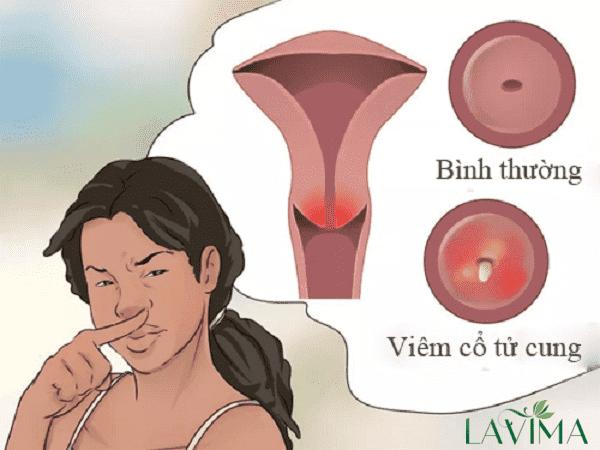 Ra khí hư nhiều nhưng không ngứa có thể do viêm cổ tử cung