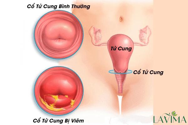 Ngứa vùng kín và tiểu buốt - dấu hiệu cảnh báo viêm cổ tử cung