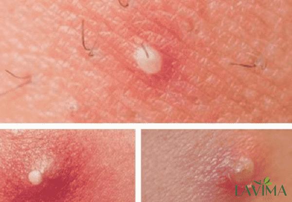 Ngứa vùng kín khi mang thai tháng cuối do viêm nang lông